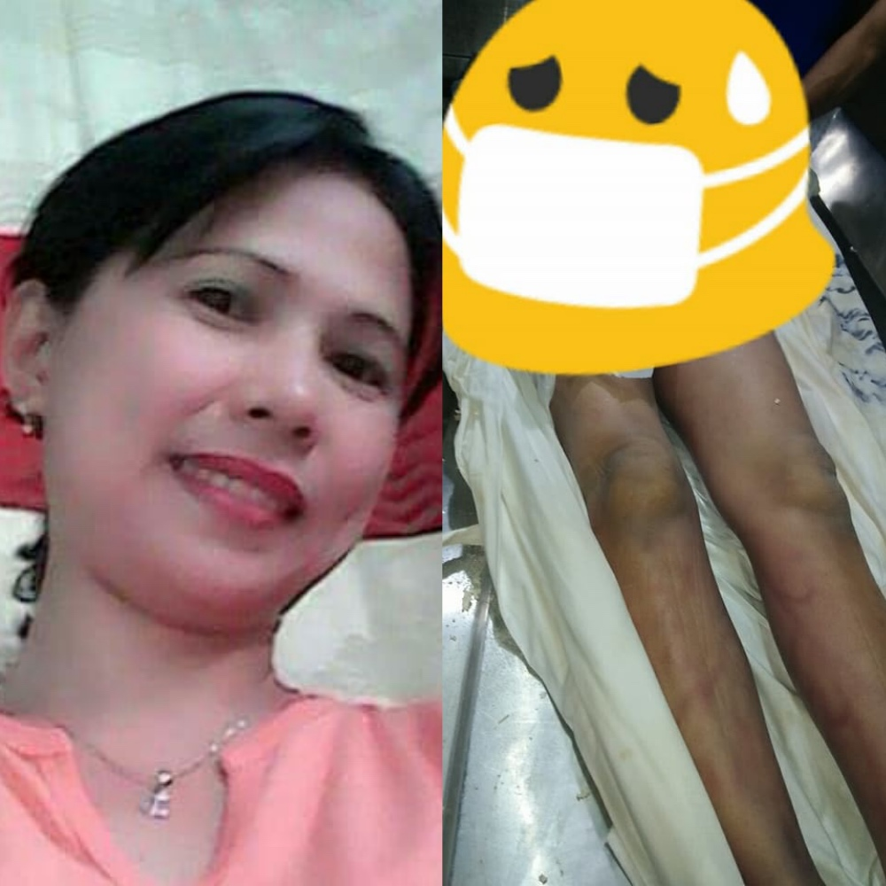 The ofw committed suicide, but her body tells otherwise. [Image Credit: Gracel Ann Hukdong/Facebook]