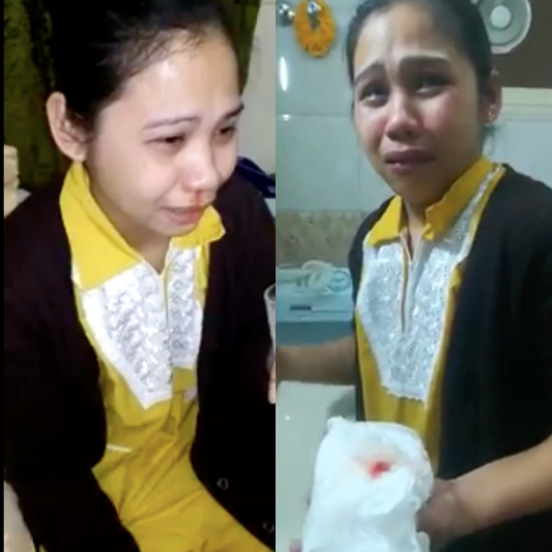 A domestic helper in Kuwait started to bleed after severe beating from her employer. [Image Credit: Pinoy OFW Pautwasan/Facebook]