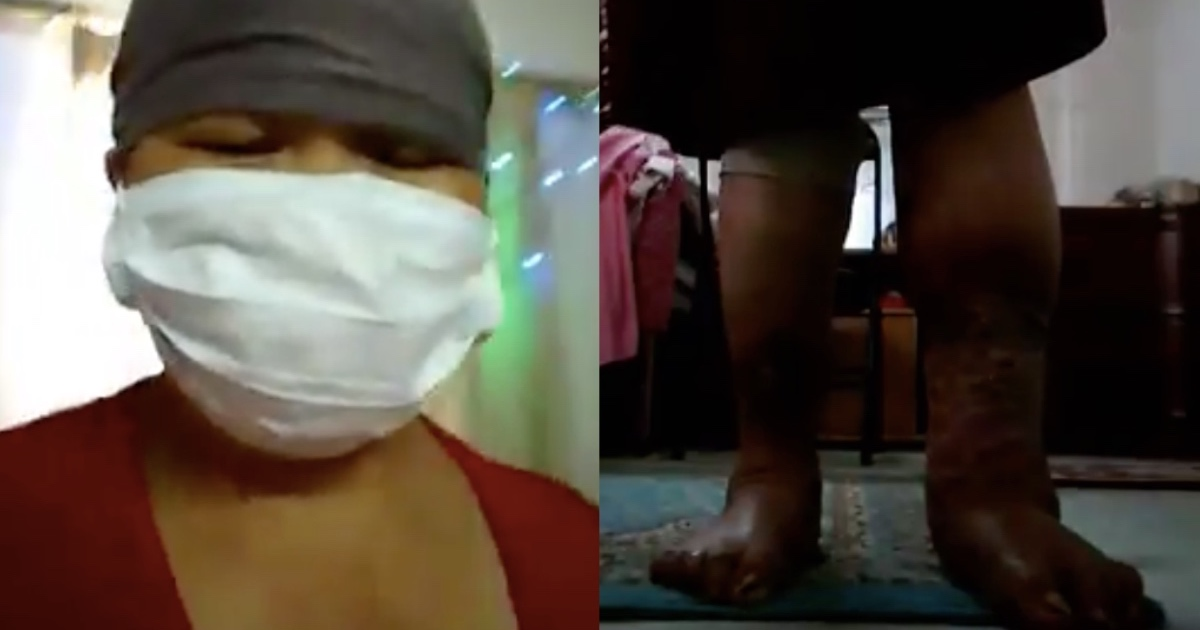 A domestic helper in Bahrain is suffering from complications of diabetes. [Image Credit: OFW CCTV / Facebook]